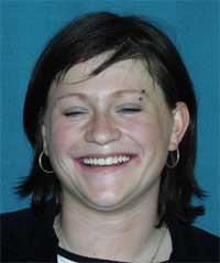 Pacientka D.M. po rovnání zubů