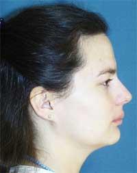 Pacientka K.K. před léčbou rovnání zubů