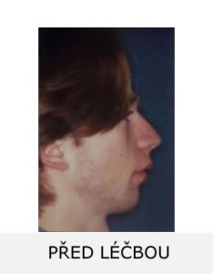 Pacient Š.P. před rovnáním zubů