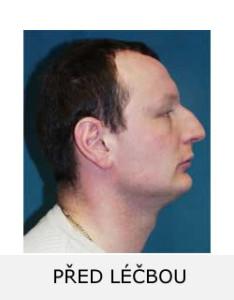 Pacient L.M. před rovnáním zubů