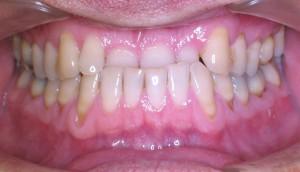 INVISALIGN, zrychlená ortodontická léčba - před