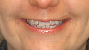 Pacient S.K.- před zrychlenou ortodontickou léčbou
