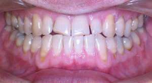 INVISALIGN, zrychlená ortodontická léčba - po ortodontické léčbě
