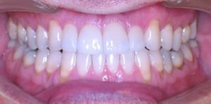 INVISALIGN, zrychlená ortodontická léčba - po estetické rekonstrukci