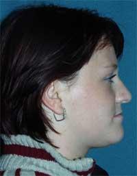 Pacientka D.M. před rovnáním zubů