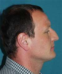 Pacient L.M. po rovnání zubů