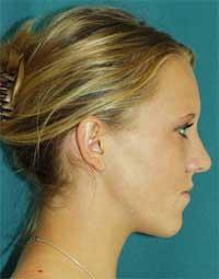 Pacientka S.G. před rovnáním zubů